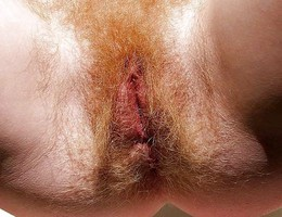 Hairy amateur Mix  gall Image 1
