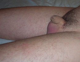 Men with tiny cocks gallery Image 5
