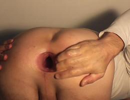 Deep fisting pics Image 8