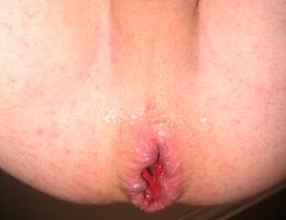 Hot gay anal fisting pics Image 8