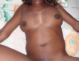 Black vagina gall Image 3