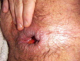 Gay horny fisting gallery Image 3