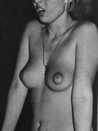 Retro Nudism